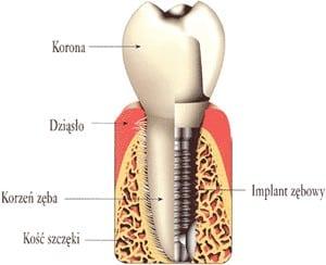 Implanty zębów grodzisk maz warszawa
