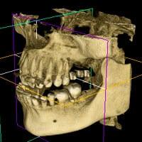 Tomografia komputerowa 3 D 3d_ico