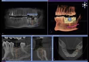 Tomografia komputerowa 3 D orthophos-top