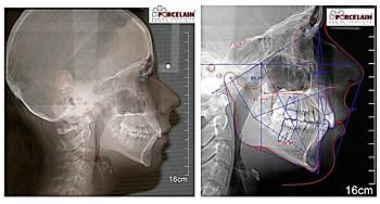 cefalometr