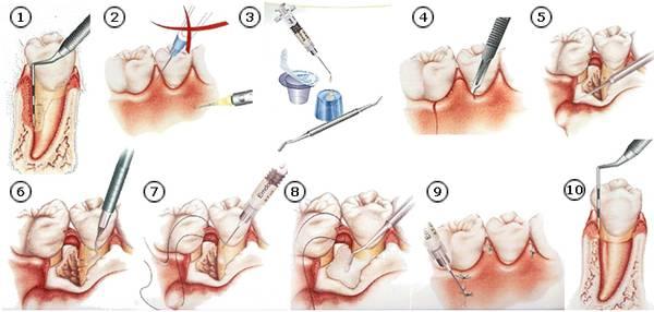 periodontologia grodzisk mazowiecki