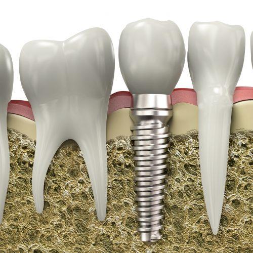implanty zębów grodzisk mazowiecki